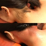 No.5 女性うなじのワックス脱毛