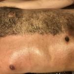 No.7 男性外国人の胸毛ワックス脱毛