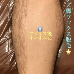 No.27 足・脚メンズワックス脱毛