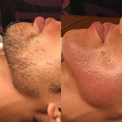No.39 メンズ髭ヒゲワックス脱毛
